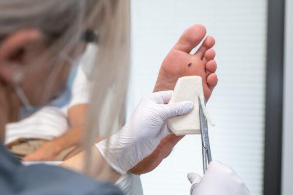 Odciążenia w podiatrii - szkolenie zaawansowane